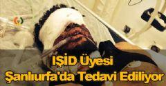 IŞİD Üyesi Şanlıurfa'da Tedavi Ediliyor