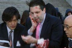 ABD'nin Güney Kore Büyükelçisine Bıçaklı Saldırı