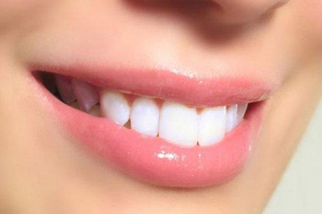 Dişleri Beyazlatmak İçin Bitkisel Çözümler