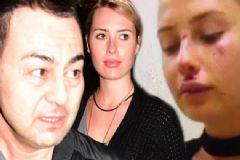 Serdar Ortaç'ın Eşi Chloe Dayak Mı Yedi?
