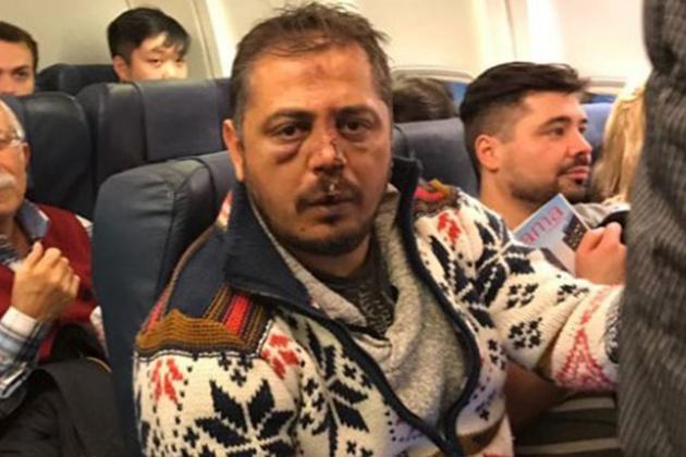 Beşiktaş Taraftarları Kiev'de Saldırıya Uğradı