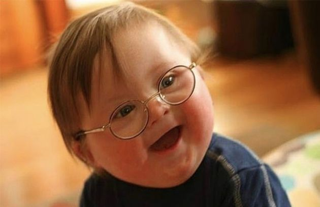 21 Mart Dünya Down Sendromu Günü