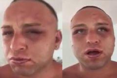 Taner Tolga Tarlacı 15 Kişi Tarafından Dövüldü