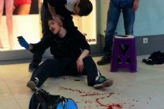AVM'de Dolaşırken Kanlar İçinde Kaldı